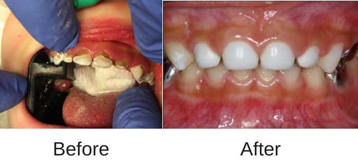 Before and after look of Baby Bottle Tooth Decay